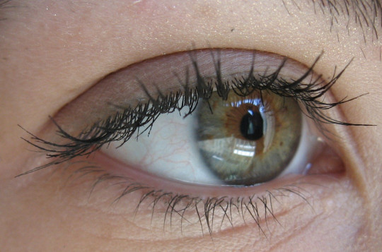 Olho verde